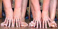 Image of toes and fingers